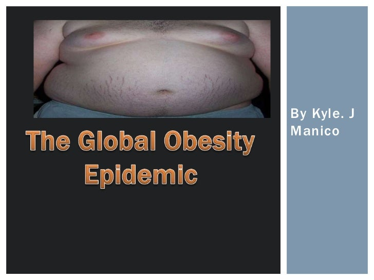Obesity around the world!!