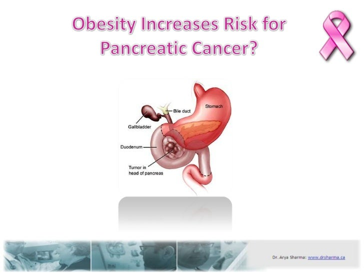 Obesity increases risk for pancreatic cancer