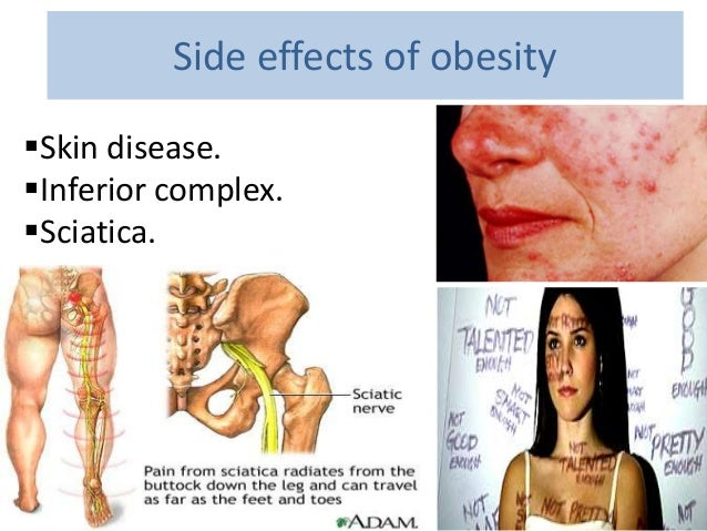 the side effects of obesity mfacourses476 web fc2