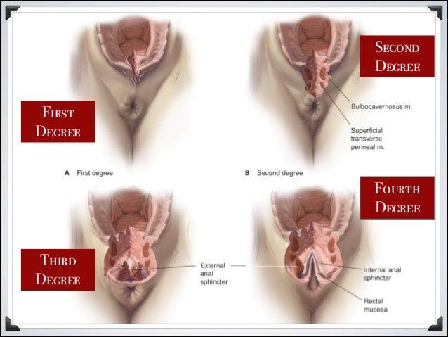 Episiotomy - Wikipedia
