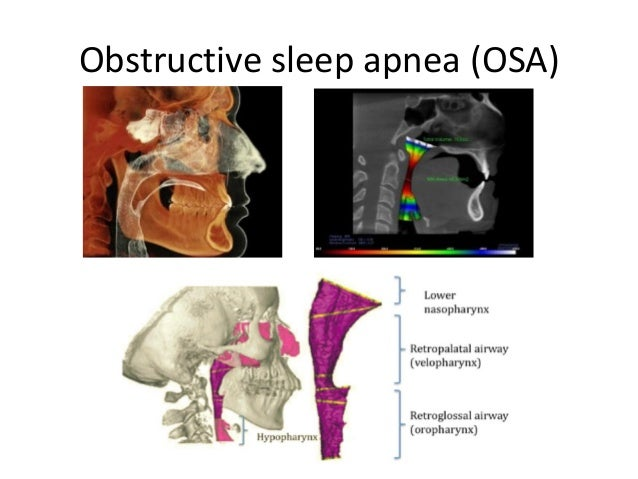 Obstructive sleep apnea (osa)The relationship of airway obstruction and dentofacial structures