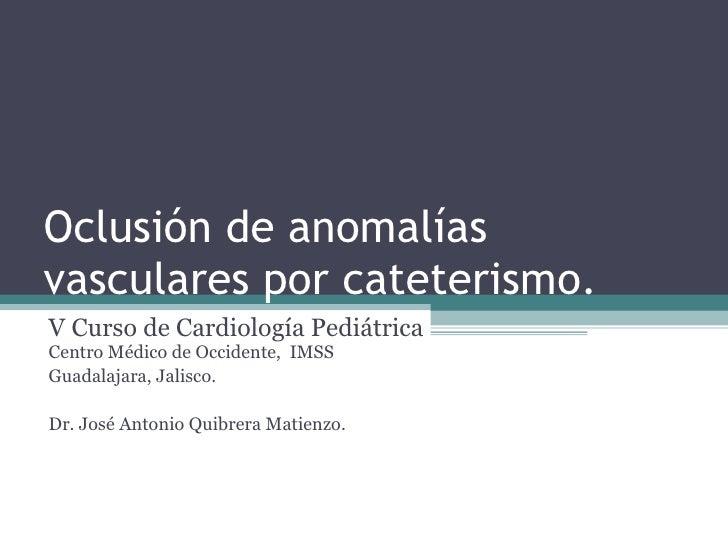 Oclusión de malformaciones vasculares