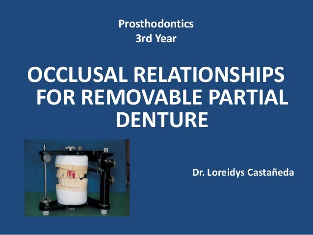 Oclusion in removable partial denture