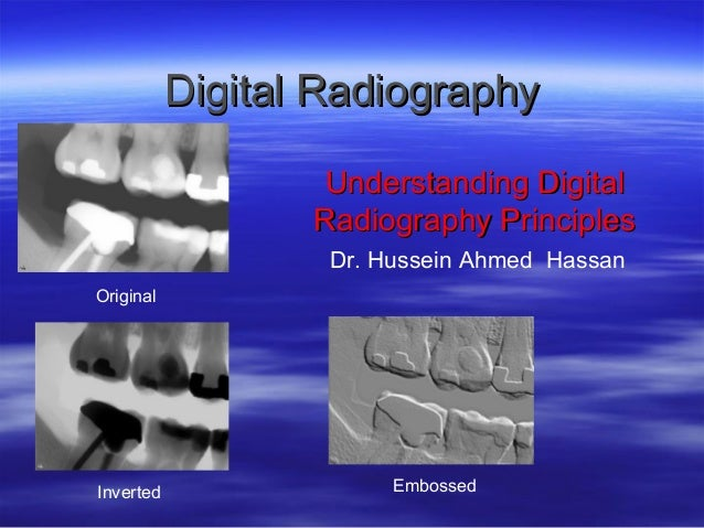 Digital Radiography Understanding Digital Radiography Principles Dr. Hussein Ahmed Hassan Original  Inverted  Embossed