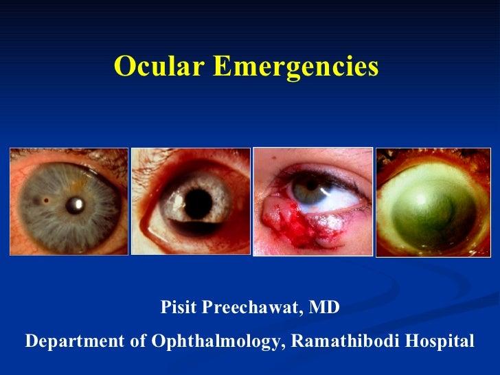 Ocular Emergencies Pisit Preechawat, MD Department of Ophthalmology, Ramathibodi Hospital