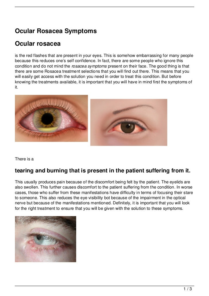 Ocular rosacea images