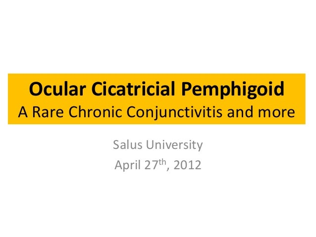 Ocular Cicatricial Pemphigoid A Rare Chronic Conjunctivitis and more Salus University April 27th, 2012