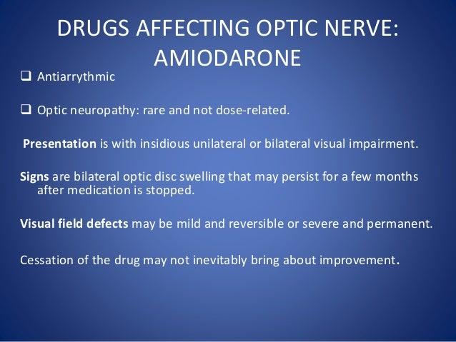 Amiodarone Toxicity Side Effects