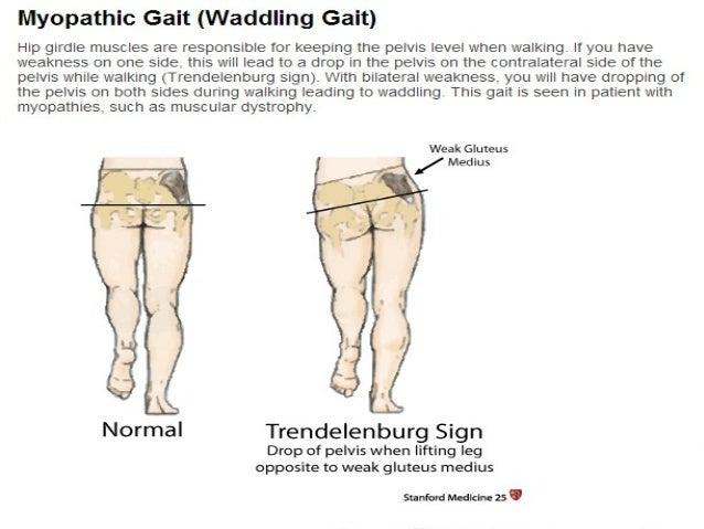 Gait Abnormalities | Stanford Medicine 25 | Stanford Medicine