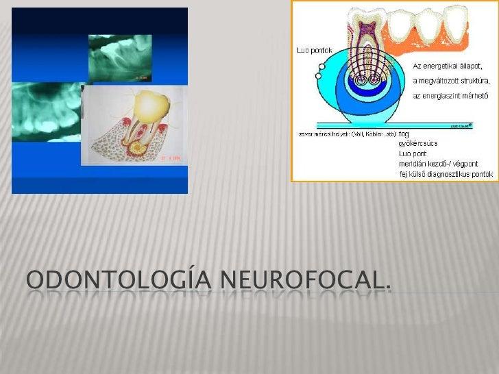 Odontología neurofocal.<br />
