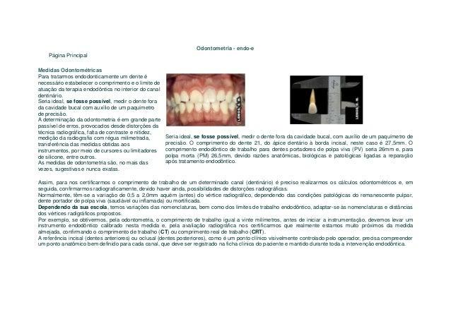 Odontometria - endo-e    Página PrincipalMedidas OdontométricasPara tratarmos endodonticamente um dente énecessário estabe...