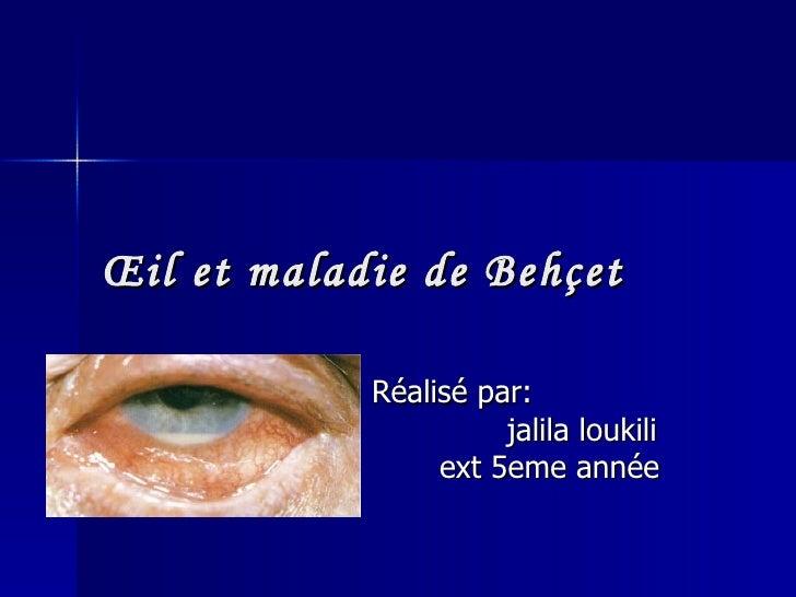 Œil et maladie de Behçet Réalisé par:  jalila loukili ext 5eme année
