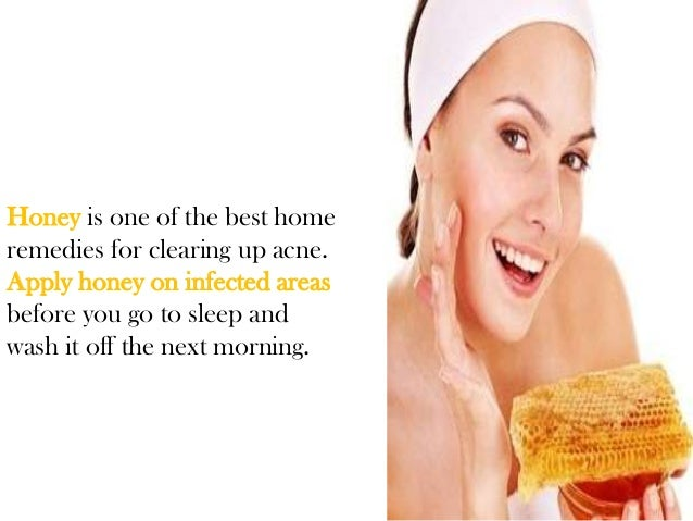 Honey home remedies for acne scars
