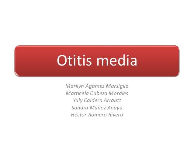 Otitis media Marilyn Agamez Marsiglia Marticela Cabeza Morales Yuly Caldera Arrautt Sandra Muñoz Anaya Héctor Romero Rivera