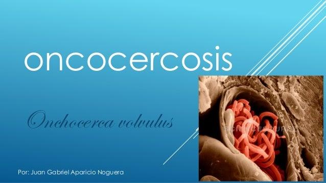 oncocercosis Onchocerca volvulus Por: Juan Gabriel Aparicio Noguera