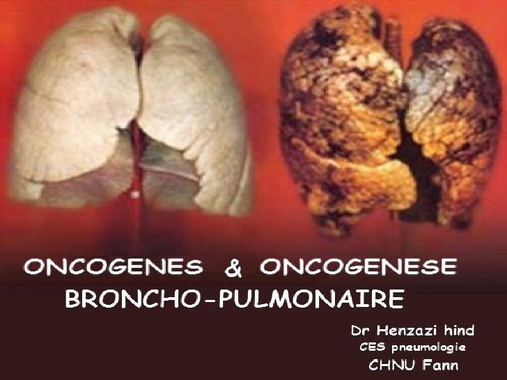 PLANI- INTRODUCTION :    1-1- Définitions.    1-2- Intérêts.    1-3- La cellule : de la vie à la mort.II- ONCOGENES.