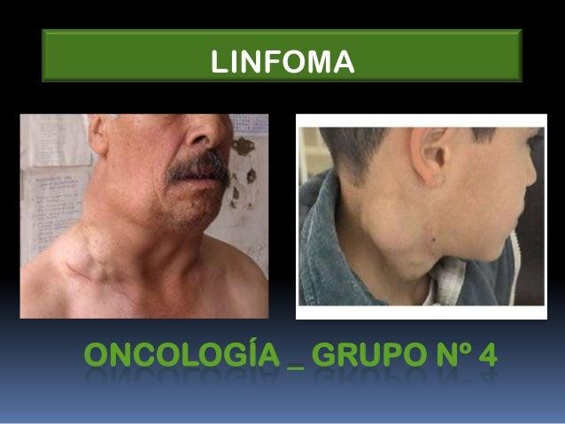 ONCOLOGÍA _ GRUPO Nº 4 LINFOMA