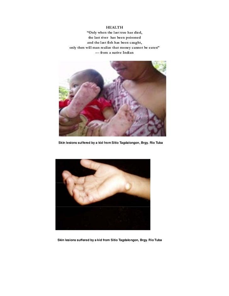 Initial Report on Increasing Incidence of Diarrhea Cases in Barangay Culamdanum, Bataraza March 31, 2011