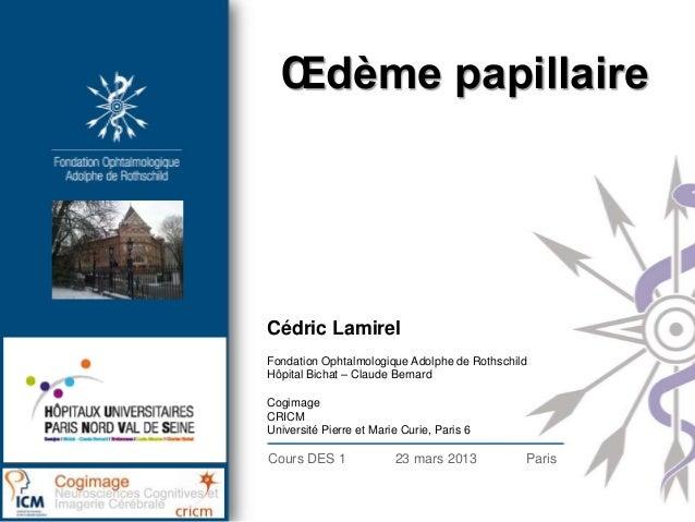 Œdème papillaireCédric LamirelFondation Ophtalmologique Adolphe de RothschildHôpital Bichat – Claude BernardCogimageCRICMU...