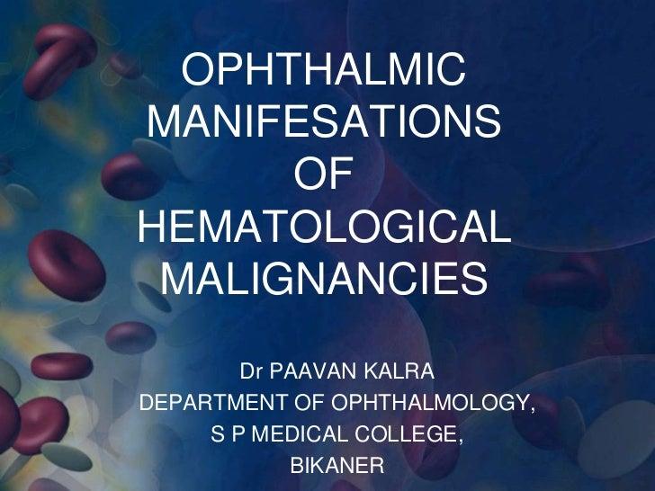 Ophthalmic Manifestations of Hematological Malignancies
