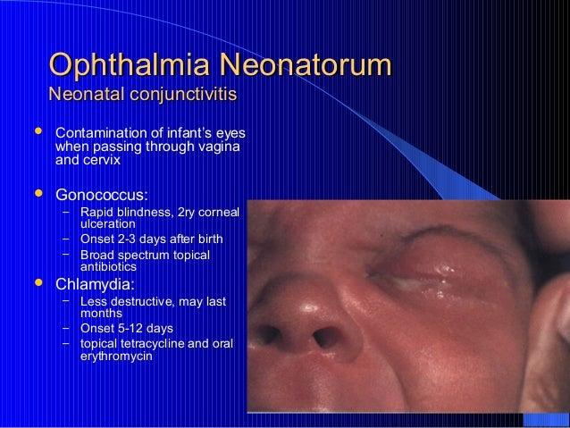 Treatment neonatal chlamydial conjunctivitis azithromycin