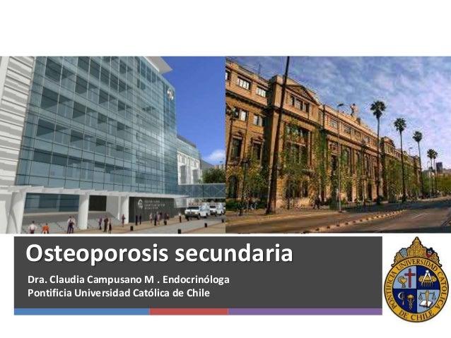 Osteoporosis secundaria Dra. Claudia Campusano M . Endocrinóloga Pontificia Universidad Católica de Chile