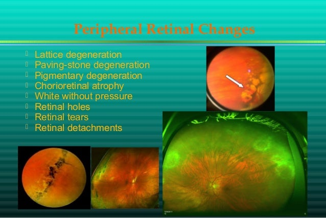 cornea and lens histopathology refractive surgery