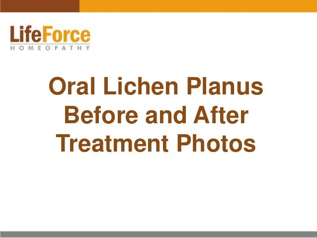 Oral Lichen Planus Before and After Treatment Photos