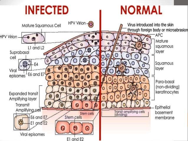 HPV human papillomavirus  The Austin Diagnostic Clinic