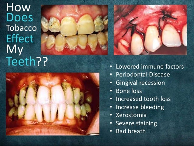 Tobacco Use and Your Oral Health