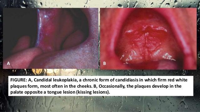 Acute atrophic candidiasis