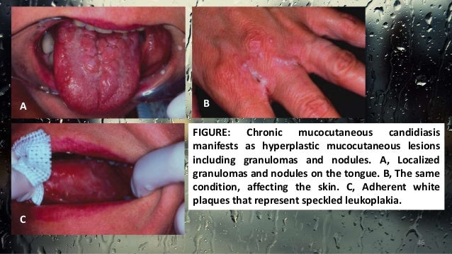 Image Gallery Mucocutaneous Candidiasis