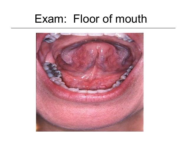 Oral Cavity Amp Oropharynx