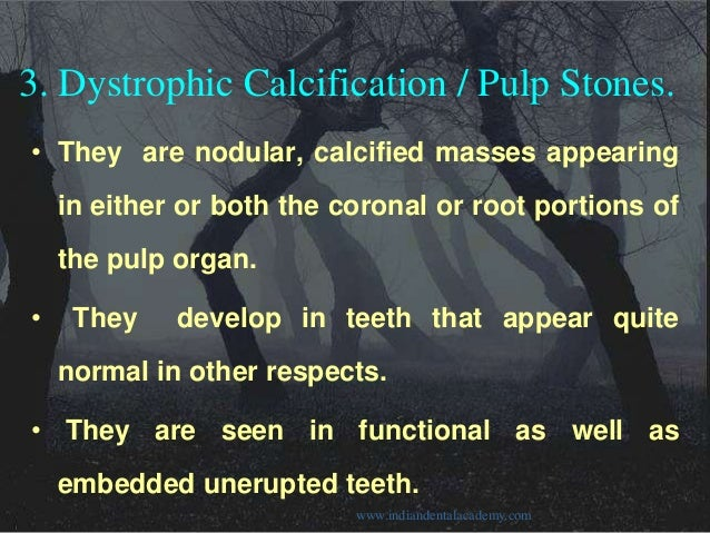 Dystrophic Calcification in Pulp Dystrophic Calcification