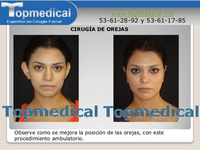 www.topmedical.mx 53-61-28-92 y 53-61-17-85 Observe como se mejora la posición de las orejas, con este procedimiento ambul...