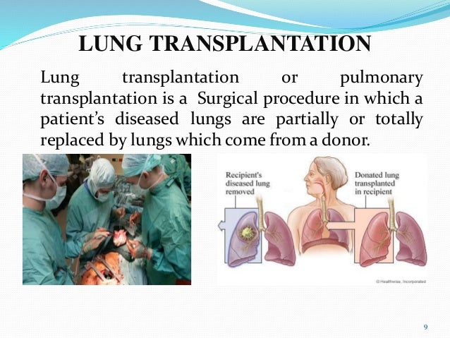 lung transplantation essay Specific antibodies after lung transplant - let the specialists do your essays for you essays & dissertations written by high class writers original reports at competitive prices available here will turn your studying into pleasure.