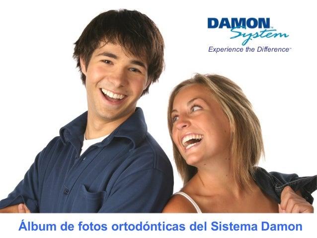 Experience the Difference™ Álbum de fotos ortodónticas del Sistema Damon