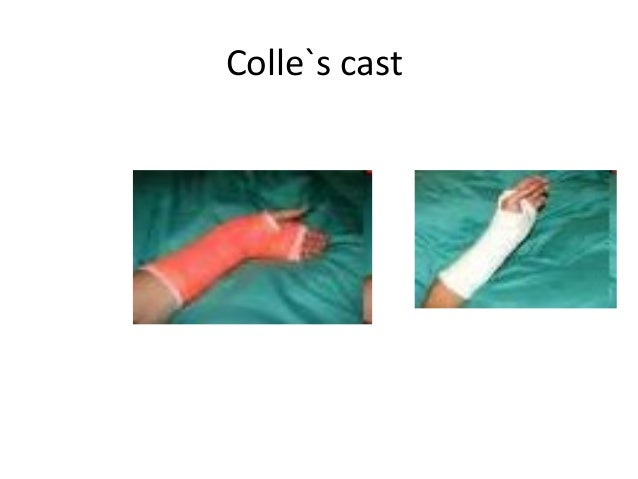 Colle S And Smith S Fracture