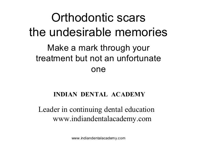 Orthodontic scars the undesirable memories Make a mark through your treatment but not an unfortunate one www.indiandentala...