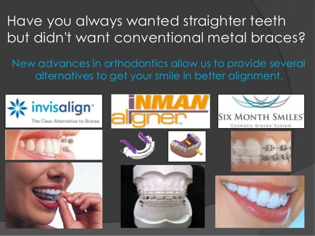 Have you always wanted straighter teeth but didn't want conventional metal braces? New advances in orthodontics allow us t...