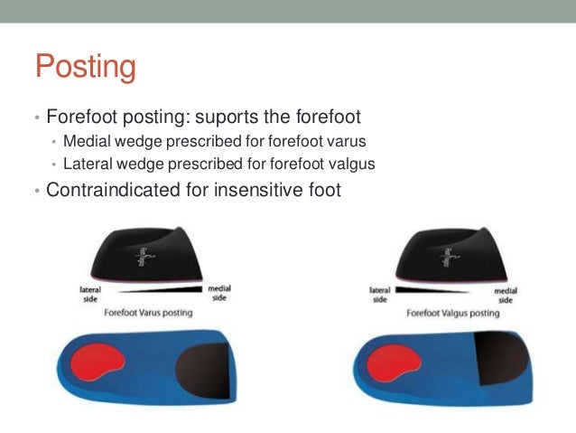 Forefoot Varus And Valgus