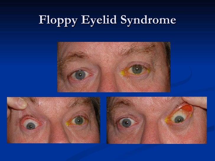 Sleep Apnea Amp The Eye 2011