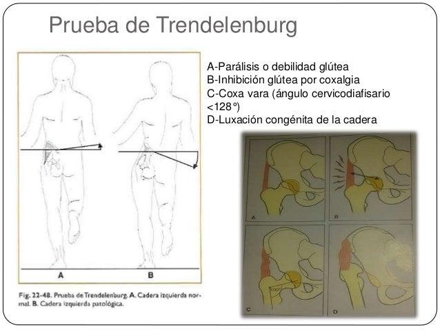 Lumbar protruziya el tratamiento los métodos públicos del tratamiento