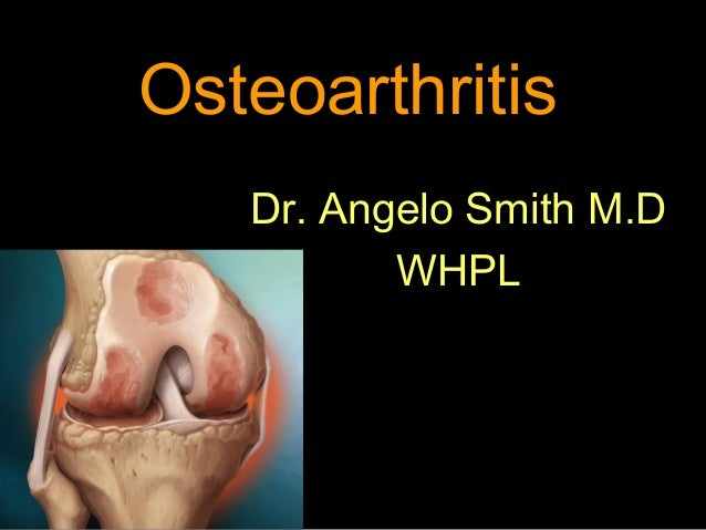 Osteoarthritis Dr. Angelo Smith M.D WHPL