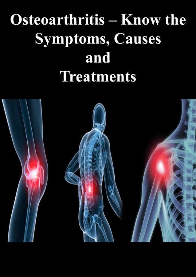 http://www.hqbk.com/ 1-718-769-2521 Osteoarthritis – Know the Symptoms, Causes and Treatments Osteoarthritis (OA) occurs w...