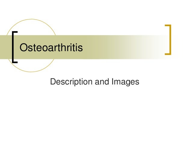 Description and Images Osteoarthritis