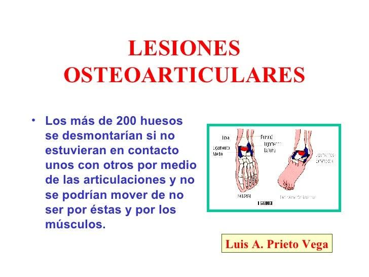 LESIONES      OSTEOARTICULARES • Los más de 200 huesos   se desmontarían si no   estuvieran en contacto   unos con otros p...