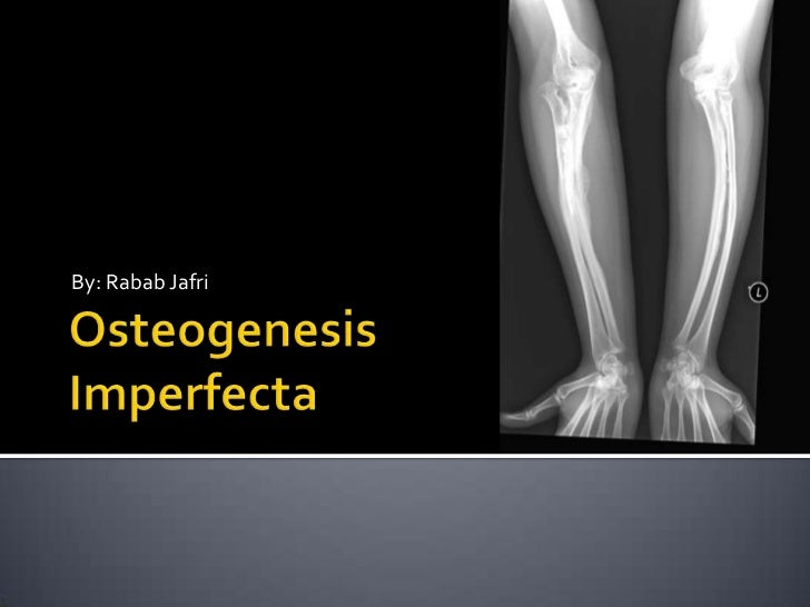 OsteogenesisImperfecta<br />By: Rabab Jafri<br />