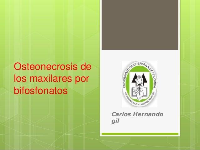 Osteonecrosis de  los maxilares por  bifosfonatos  Carlos Hernando  gil