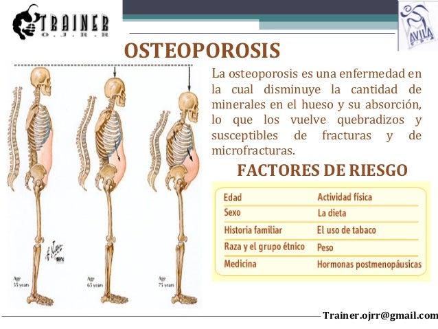 La osteoporosis es una enfermedad en la cual disminuye la cantidad de minerales en el hueso y su absorción, lo que los vue...